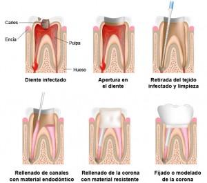 como-se-hace-endodoncia