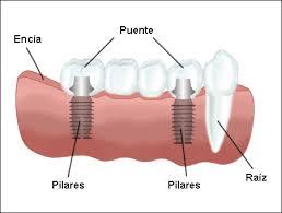 puente sobre implante